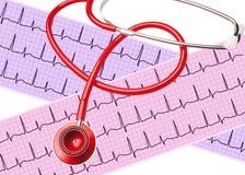 Analyse de coeur, graphique d'électrocardiogramme (ECG) avec le stéthoscope Photos libres de droits