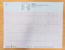 Analyse de coeur, graphique ECG d'électrocardiogramme Photo libre de droits