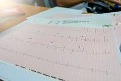 Analyse de coeur, graphique ECG d'électrocardiogramme Photographie stock