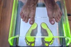 Analyse de posture et d'équilibre Photographie stock