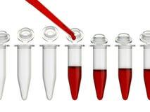 Analyse de sang de laboratoire Photo libre de droits