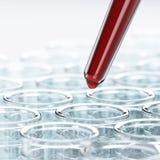 Analyse de sang de laboratoire Images libres de droits
