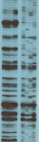 Analysis of RNA sequence. By gel electrophoresis Stock Photo