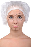 Anaplasty. Before plastic surgery. Beautiful young woman in medical headwear and markings on face looking at camera while isolated on white royalty free stock photography