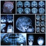 Anatomía de la cabeza y del cuello Imagen de archivo libre de regalías