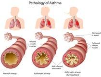 Anatomía del asma stock de ilustración