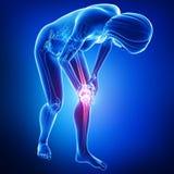 Anatomía del dolor femenino de la rodilla stock de ilustración