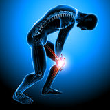 Anatomía del dolor masculino de la rodilla Imagen de archivo libre de regalías