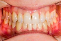 Anatomía dental Fotografía de archivo libre de regalías
