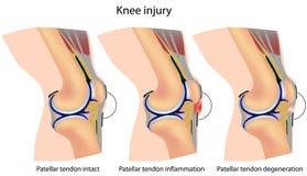 Anatomía de la rodilla del puente Foto de archivo