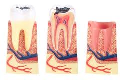 Anatomía del diente Fotos de archivo libres de regalías
