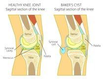 Anatomi av cystan för knee_Baker` s vektor illustrationer