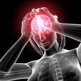 Anatomi av huvudet smärtar Arkivbild