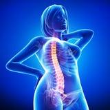 Anatomi av kvinnligbacken smärtar i blue Arkivfoton