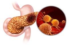 Anatomi för bukspottkörtel- cancer royaltyfri illustrationer