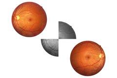 Anatomi för mänskligt öga, näthinna, artär och åder etc. för optisk diskett Arkivbild