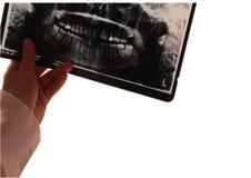 Anatomi för tand- tandläkare för tand radiograpy Arkivfoto