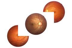 Anatomi för mänskligt öga, näthinna, artär och åder etc. för optisk diskett Royaltyfri Foto