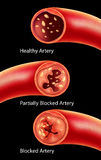 Anatomia Atherosclerosis w arterii Fotografia Stock