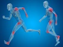 Anatomia conceptual do homem com dor ou dor no fundo azul Foto de Stock