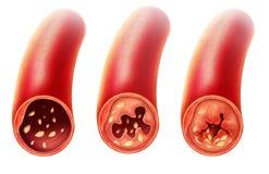 Anatomia da aterosclerose na artéria Fotografia de Stock
