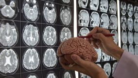 Anatomia de ensino do cérebro do doutor filme