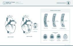 Anatomia de um cardíaco de ataque ilustração royalty free
