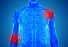 Anatomia dei giunti umani - concetto di lesione Fotografie Stock Libere da Diritti