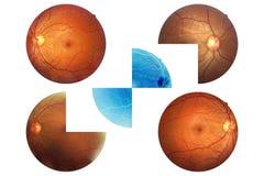 Anatomia dell'occhio umano, retina, arteria del disco ottico e vena ecc Fotografia Stock Libera da Diritti