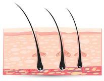 Anatomia della pelle Fotografie Stock
