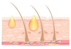 Anatomia della pelle con acne illustrazione di stock