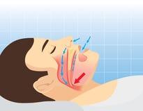 Anatomia delle vie respiratorie umane mentre russando Fotografie Stock