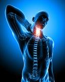 Anatomia di dolore al collo in blu Fotografia Stock Libera da Diritti