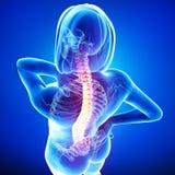 Anatomia di dolore alla schiena femminile Immagine Stock Libera da Diritti