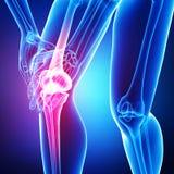 Anatomia di dolore del ginocchio isolata in blu Fotografia Stock Libera da Diritti