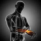 Anatomia di dolore della mano Fotografie Stock
