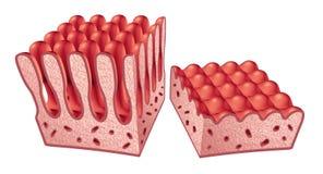 Anatomia di malattia celiaca illustrazione di stock