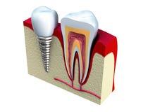 Anatomia dos dentes saudáveis e do implante dental na maxila Imagem de Stock Royalty Free