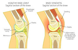 Anatomia knee_synovitis Obraz Stock