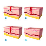 Anatomia tkankowy tepair w ludzkiej skórze Zdjęcie Royalty Free