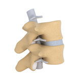 Anatomia umana - vertebra Fotografia Stock Libera da Diritti