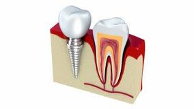 Anatomia zdrowi zęby i stomatologiczny wszczep w szczęki kości royalty ilustracja