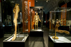 Anatomical exhibits at the exhibition Royalty Free Stock Image