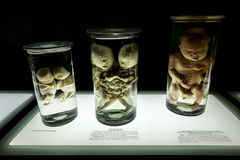 Anatomical exhibits at the exhibition Stock Photo