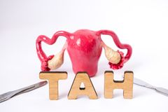 Anatomical shape of uterus with ovaries is at slightly blurred background and in foreground are the letters which form medical acr. Onym TAH Total Abdominal stock image