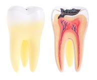 Anatomie de dent Photographie stock libre de droits