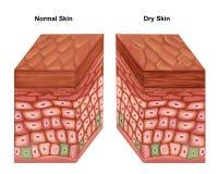 Anatomie der trockenen Haut lizenzfreie abbildung