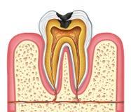 Anatomie intérieure de dent d'une cavité Photographie stock libre de droits