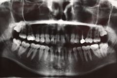 Anatomie radiograpy de dentiste dentaire de dent Photo libre de droits
