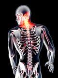 Anatomie - Rugpijn vector illustratie